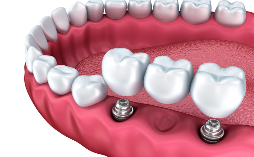 What to Expect from a Dental Implant Procedure
